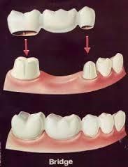 ฟันปลอมติดแน่นแบบสะพานฟัน