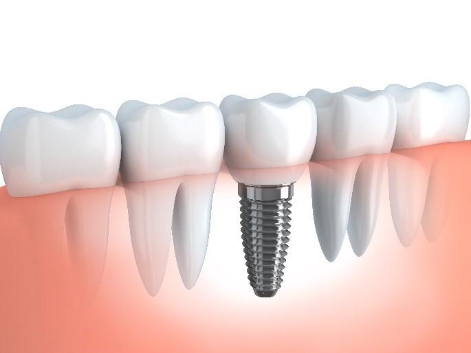 ฟันปลอมติดแน่นแบบรากเทียม (Implant)