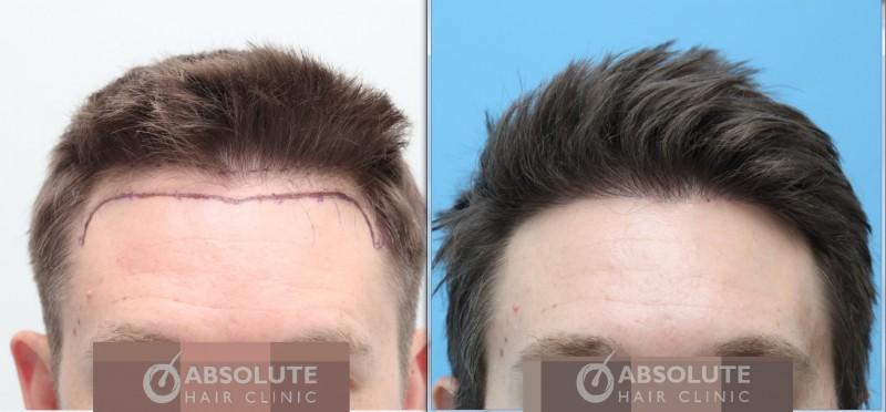 Case 9 Fue 1250 Grafts 6 5 Months Result Fue Hair