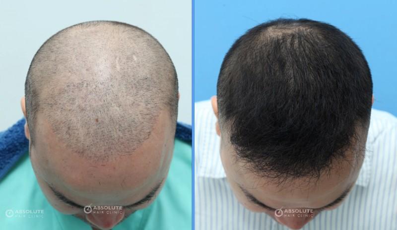 Case 28 2204 Grafts 14 Months Result Fue Hair Transplant