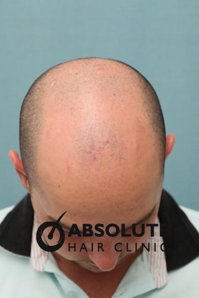 Case 38 Fue Hair Transplant Bangkok 3000 Grafts 1 Year