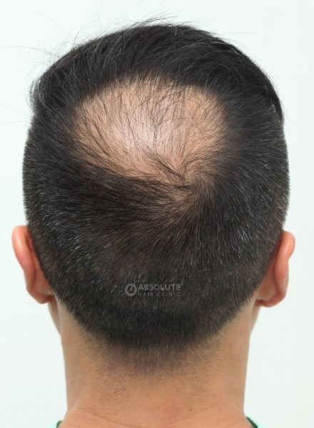 Case 47 Fue Hair Transplant Thailand 1500 Grafts