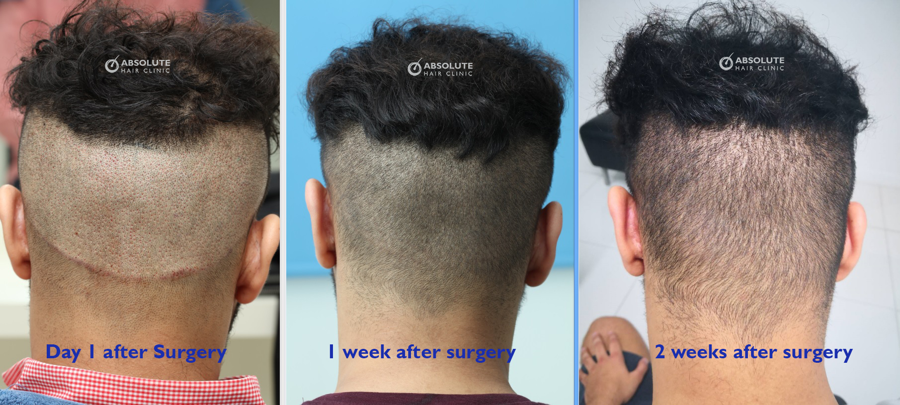 Post Op Timeline Fue Hair Transplant Bangkok Thailand Dr