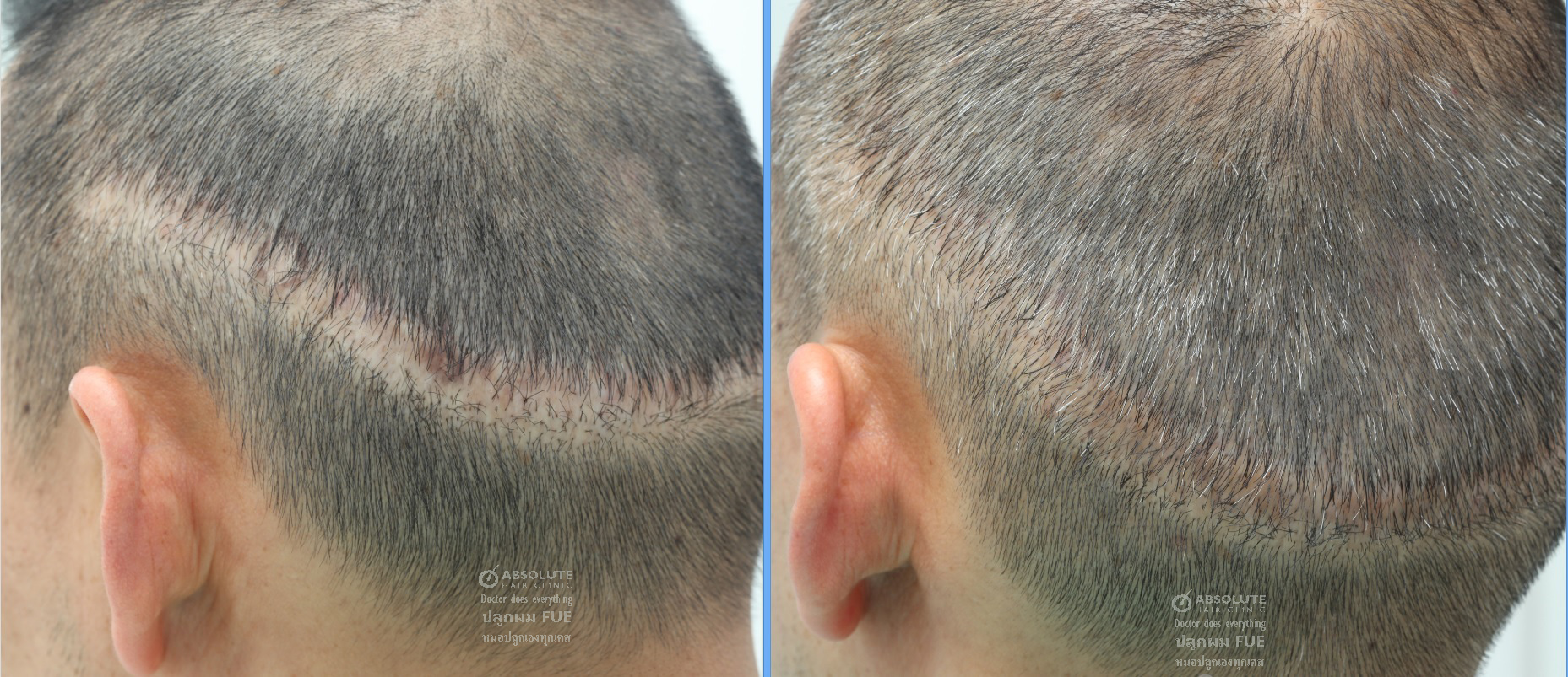 FUE hair transplant into strip FUT scar